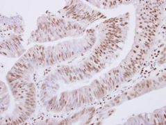 ZNF434 Antibody (PA5-30657)