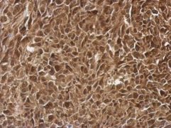 PRMT7 Antibody (PA5-30748)