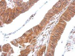 CXCL16 Antibody (PA5-30786)
