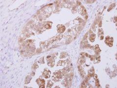RBKS Antibody (PA5-30794)