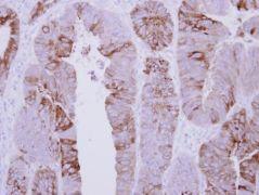 COLQ Antibody (PA5-30941)