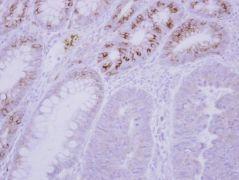 GCKR Antibody (PA5-30944)