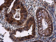 RNF133 Antibody (PA5-31044)