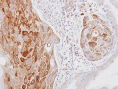 COL14A1 Antibody (PA5-31047)