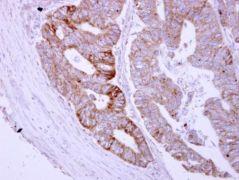 ASB8 Antibody (PA5-31068)