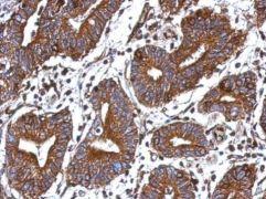 GIMAP4 Antibody (PA5-31072)