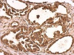 NUFIP1 Antibody (PA5-31183)