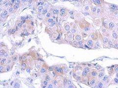MTMR12 Antibody (PA5-31375)