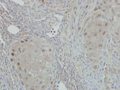 NAT10 Antibody (PA5-31376)