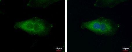 NDUFAF5 Antibody (PA5-31396)