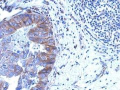 ZNF598 Antibody (PA5-31409)