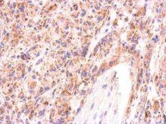 AAMP Antibody (PA5-31454)