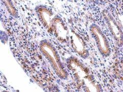 GALNT7 Antibody (PA5-31458)