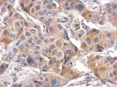 LILRA4 Antibody (PA5-31475)