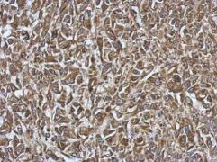 SMYD1 Antibody (PA5-31482)