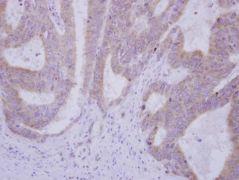 USP49 Antibody (PA5-31525)