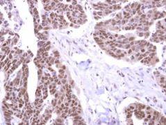 STK31 Antibody (PA5-31551)