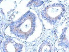 CCDC28B Antibody (PA5-31561)