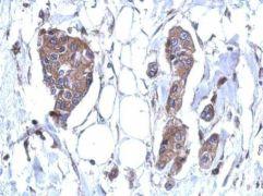 DDX59 Antibody (PA5-31563)