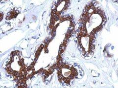 AGBL4 Antibody (PA5-31572)