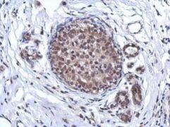 ARS2 Antibody (PA5-31593)