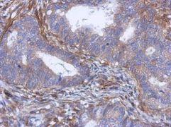 PABPC5 Antibody (PA5-31596)