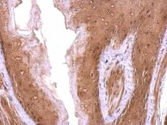 Nop25 Antibody (PA5-31677)