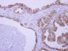UBAC1 Antibody (PA5-31698)