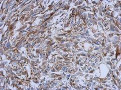 CREB3L3 Antibody (PA5-31708)