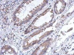 PLA2G4F Antibody (PA5-31735)