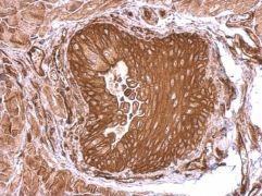 SEMA4B Antibody (PA5-31796)