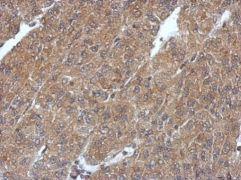 PHYHIP Antibody (PA5-31835)