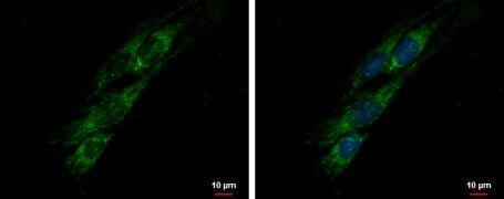 PITRM1 Antibody (PA5-31836)