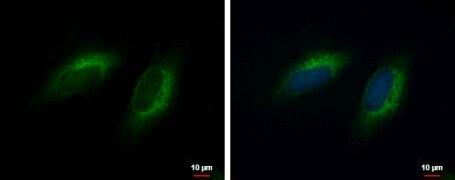 COMMD10 Antibody (PA5-31868)