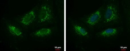KIAA0391 Antibody (PA5-31906)