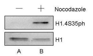 Phospho-Histone H1.4 (Ser35) Antibody (PA5-31907)