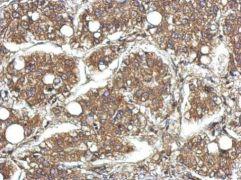 CYFIP1 Antibody (PA5-31984)