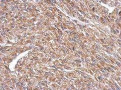 CPEB4 Antibody (PA5-32039)