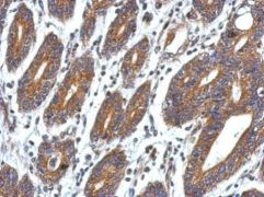 CCDC127 Antibody (PA5-32051)