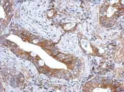 GCNT3 Antibody (PA5-32056)