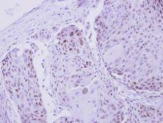 ZNF530 Antibody (PA5-32092)