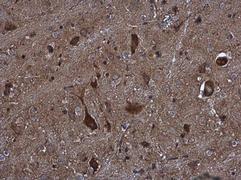 KIFC2 Antibody (PA5-32165)