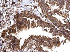 Bcl-xS Antibody (PA5-32203)