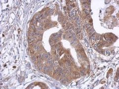 TLR4 / CD284 Antibody (PA5-32216)