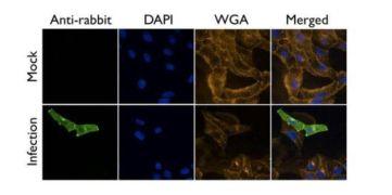 Influenza A M2 Antibody (PA5-32233)