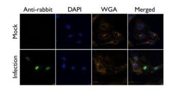 ATP6V0D1 Antibody (PA5-32243)