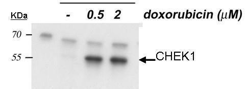 Phospho-CHK1 (Ser345) Antibody (PA5-34625)