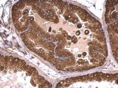 mTOR Antibody (PA5-34663)