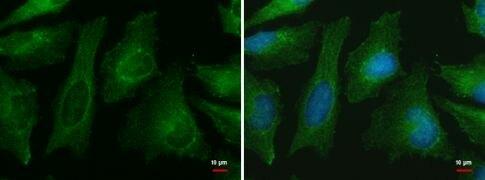 CNPPD1 Antibody (PA5-34673)