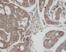TrxR1 Antibody (PA5-34685)